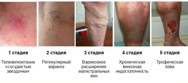 первая стадия варикоза, вторая стадия варикоза