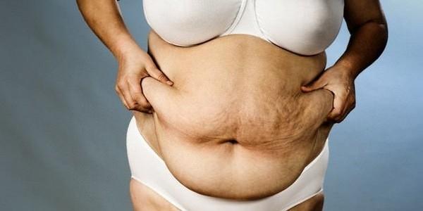 Варикоз и диета