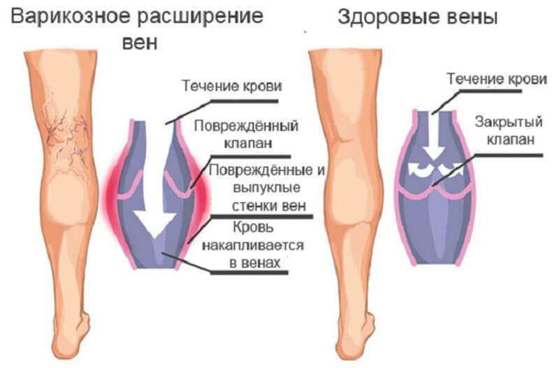 третья стадия развития варикоза