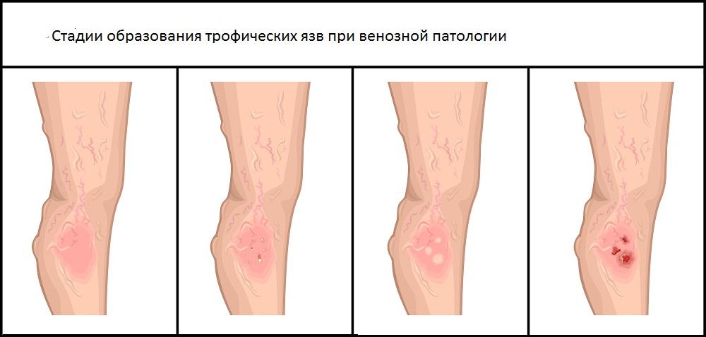Четвертая стадия развития варикоза