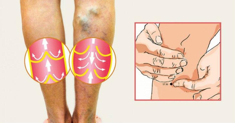 кровотечение при варикозном расширении вен нижних конечностей