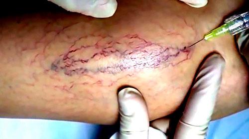 склеротерапия, флебология