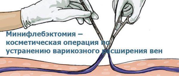 минифлебэктомия